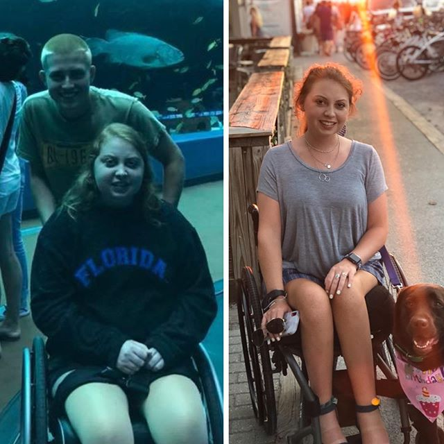 In 2018, Mariel started the long process of accepting her disabilities and learning how to care for herself as a paraplegic. With the help of a personal trainer and an app for women in wheelchairs (Disability Icon), she lost the 50pounds she had gained on steroids and built her upper body strength so she could transition from a wheelchair without assistance.